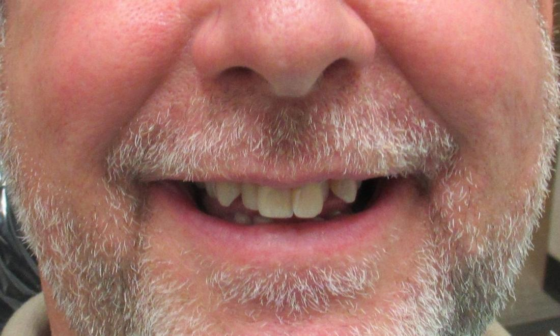 image of teeth without any orthodontic work | temple tx
