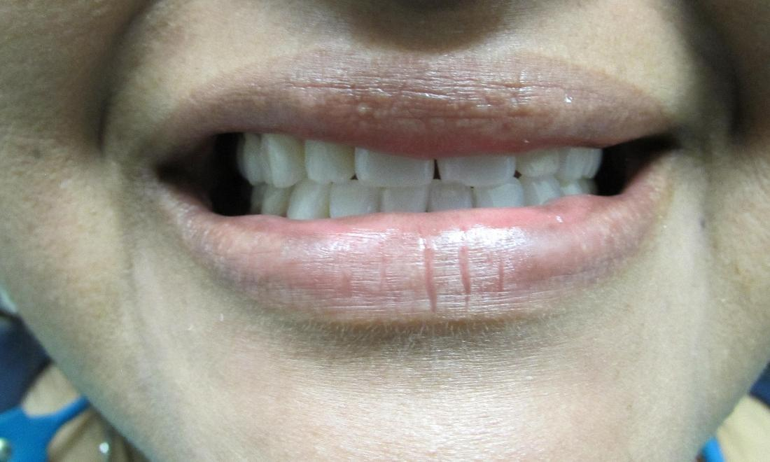 image of chipped & uneven teeth | temple tx