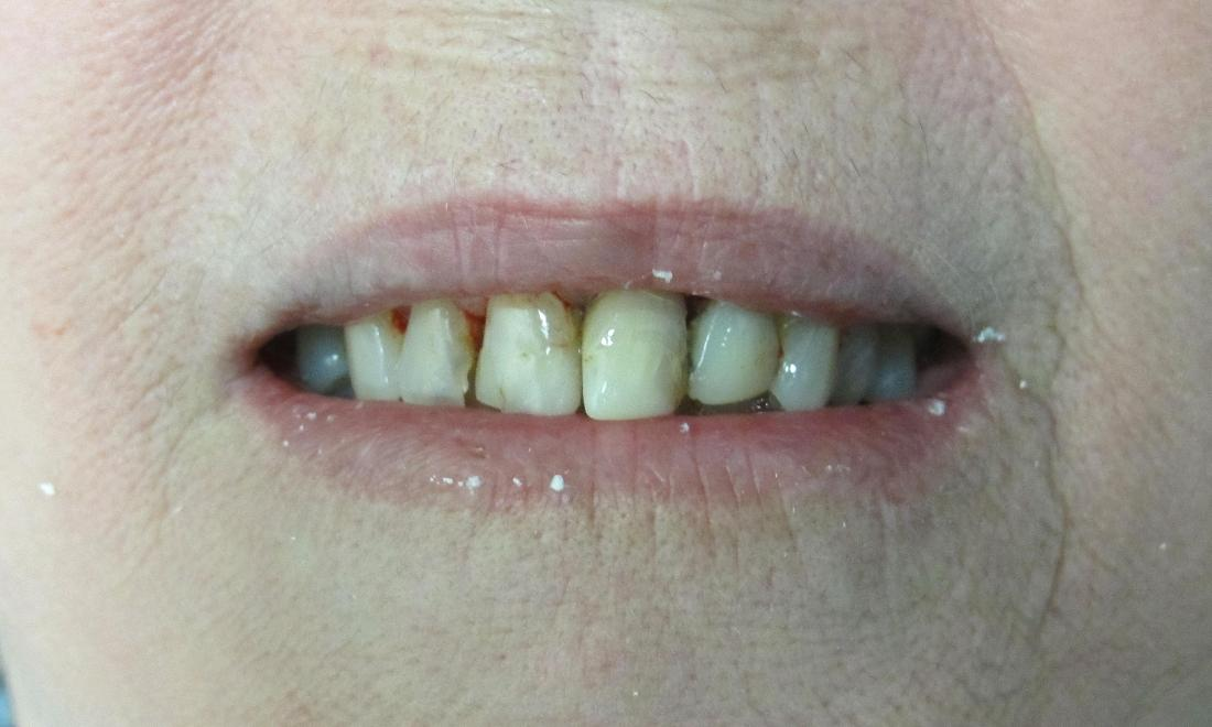 before image of chipped & yellow teeth | temple tx