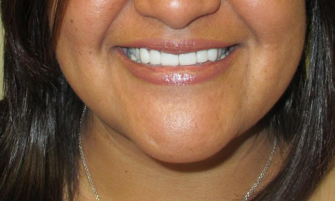 image of the same teeth after porcelain veneers and whitening | temple tx