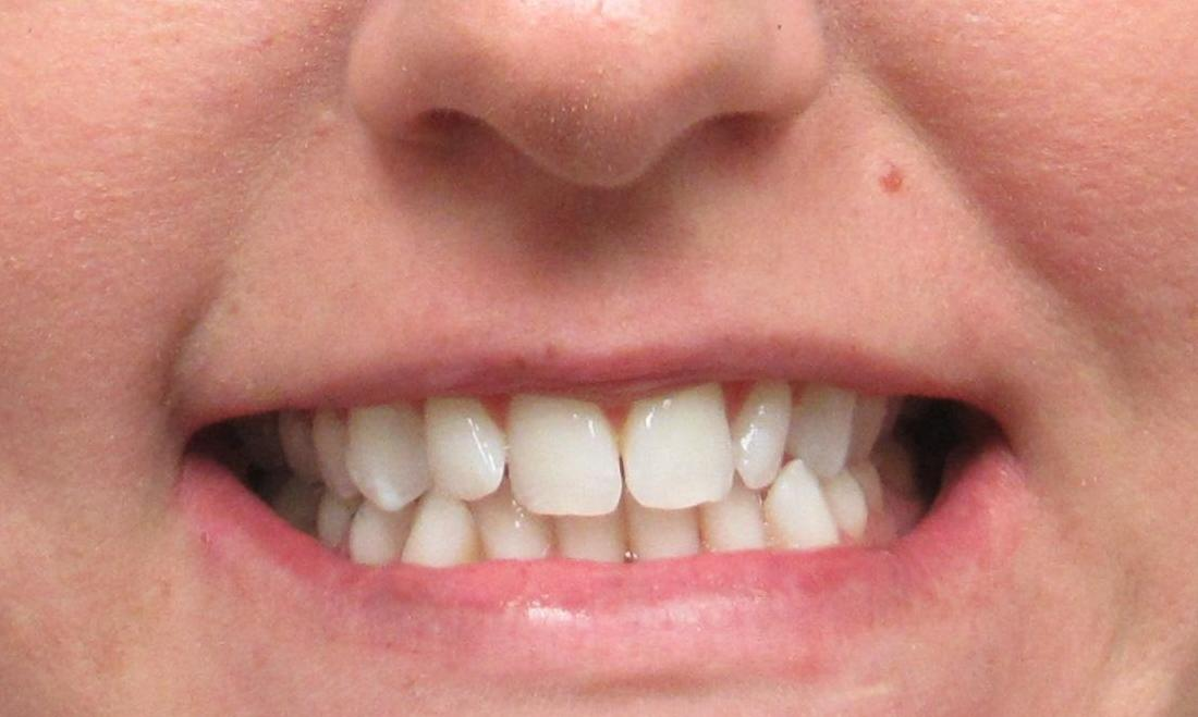 image of teeth with crowding and crossbite | temple tx
