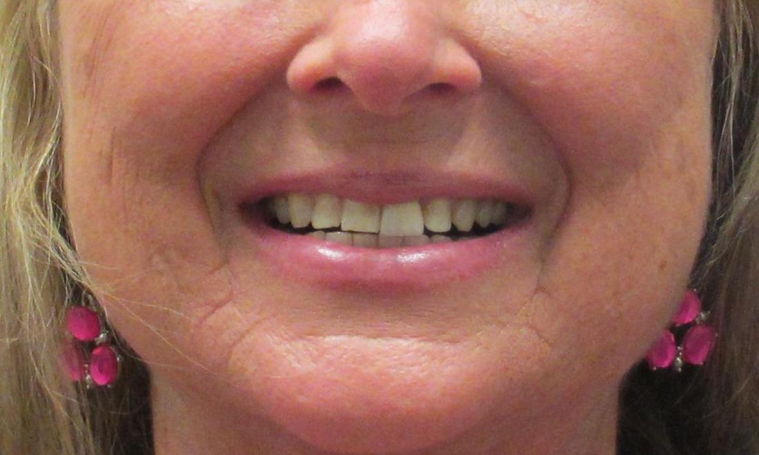 woman before veneers I Temple Dental Trails