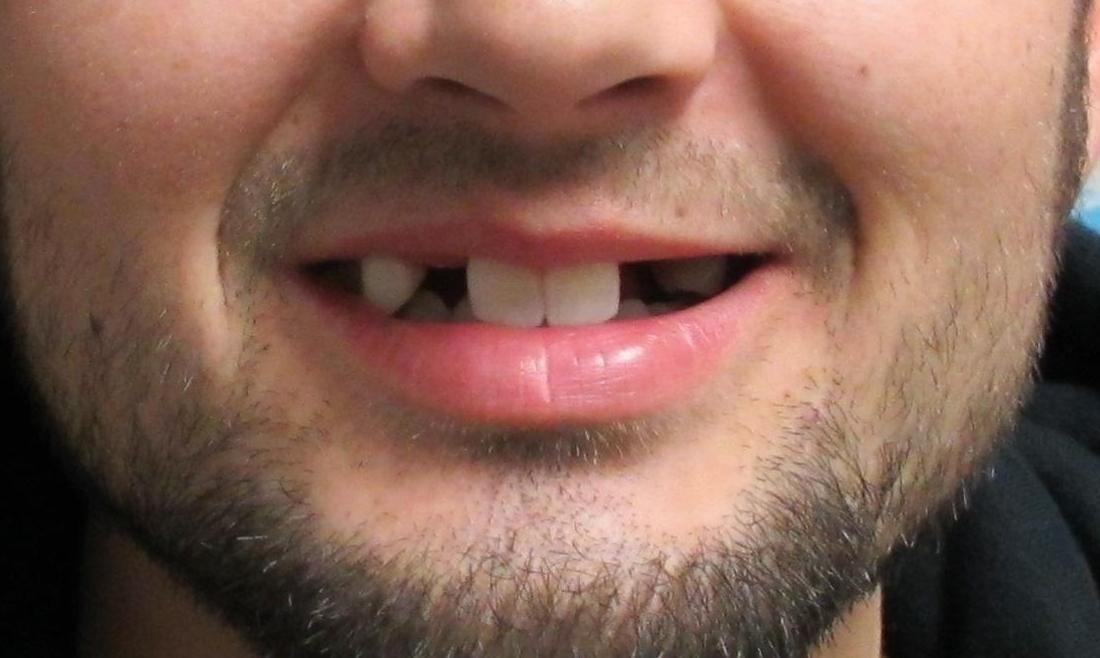 image of teeth before dental implants | temple tx