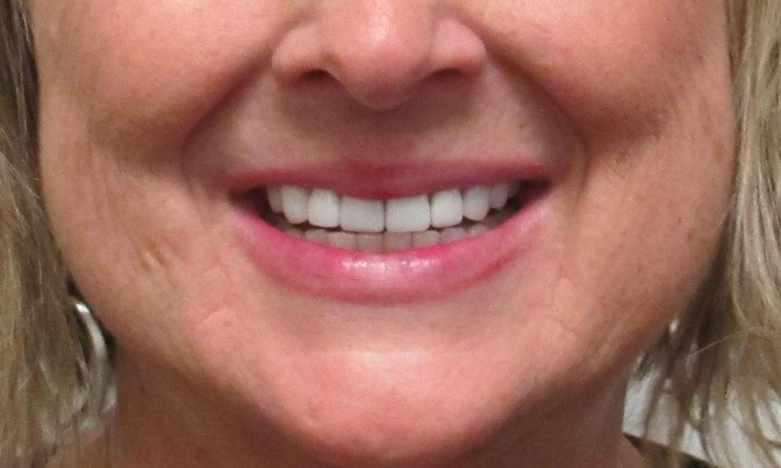 woman after veneers I Temple, TX