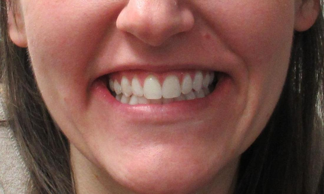 image of the same teeth after a Six Month Smile makeover | temple tx
