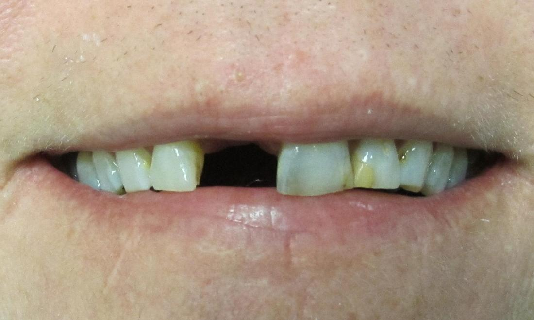 image of discolored and missing teeth | temple tx