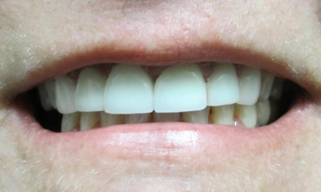 Image of the same teeth after crowns and a fixed bridge | temple tx