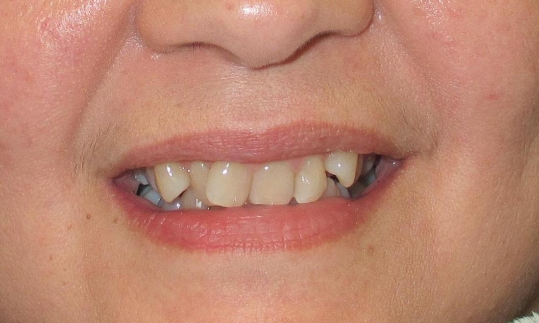 before image of crooked teeth before orthodontics | temple tx