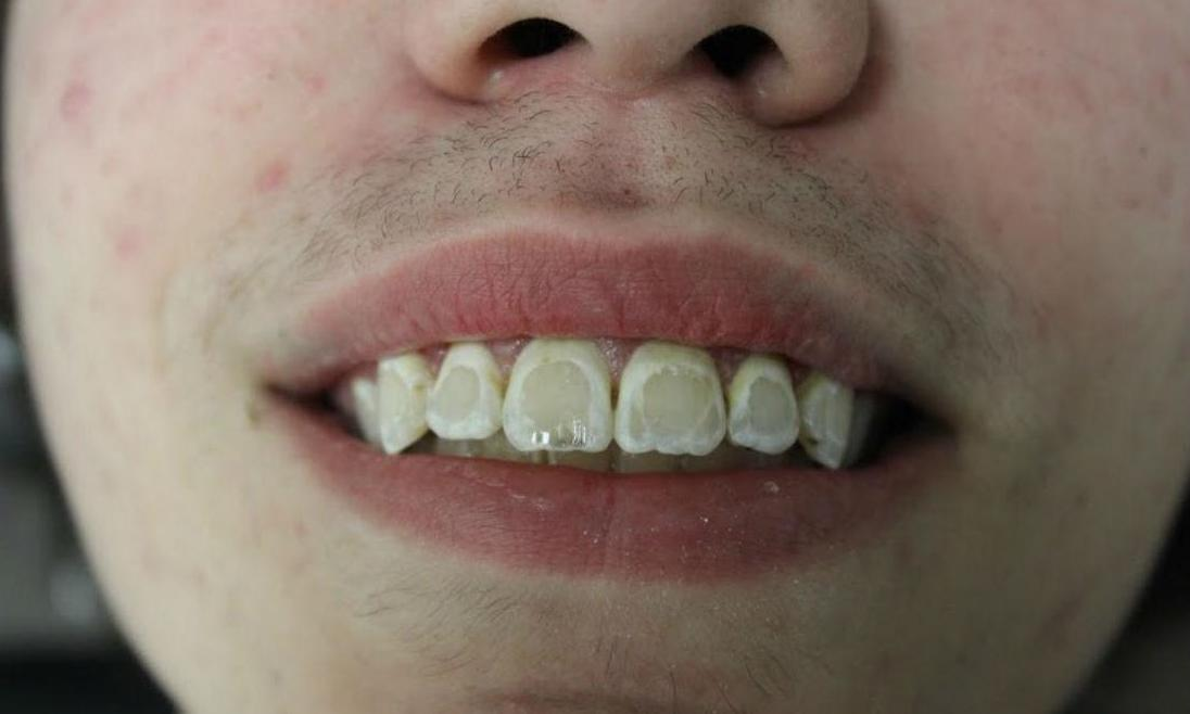image of discolored teeth after braces | temple tx