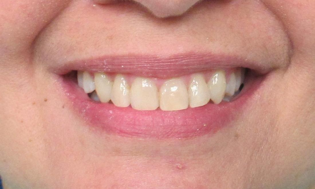 after image of the same teeth after clear braces | temple tx