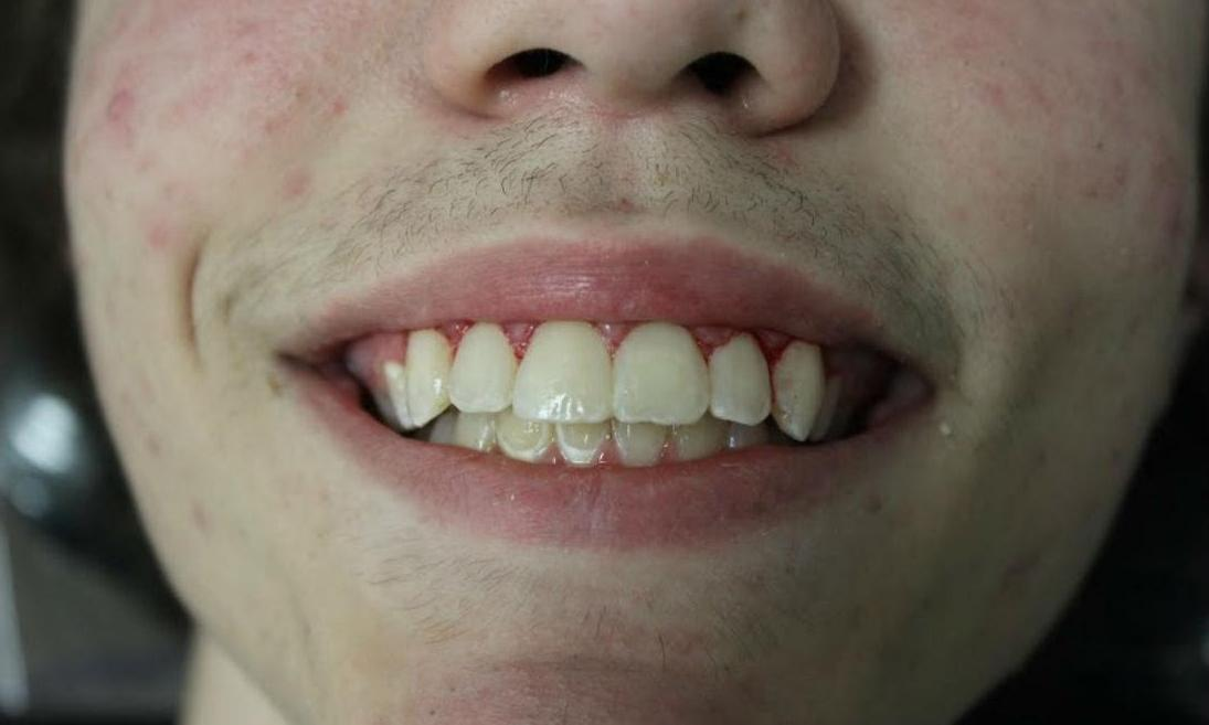 image of the same teeth after Zoom Whitening | temple tx