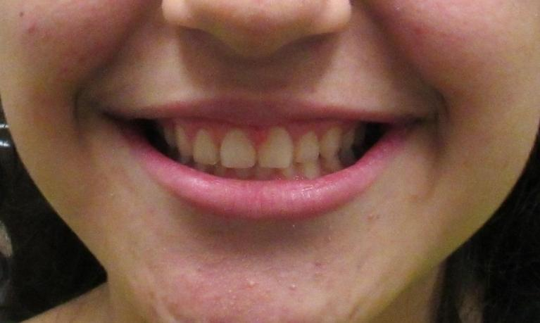 Image of the same teeth after short term orthodontics | temple tx