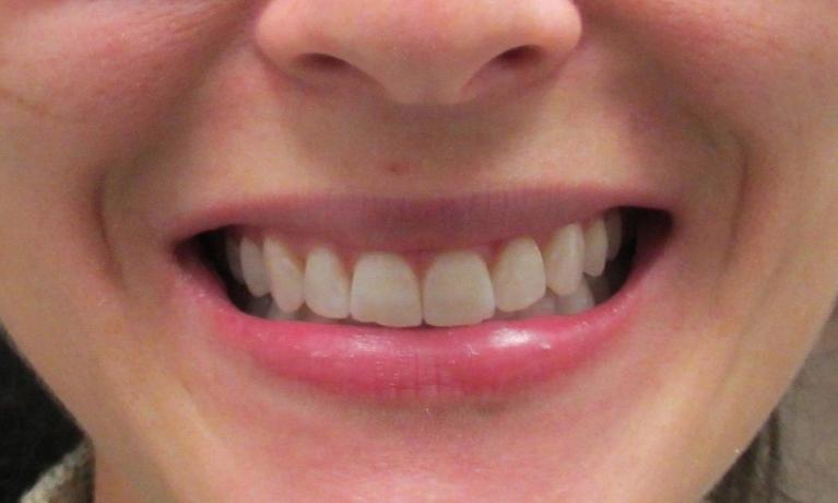 image of the same teeth after invisalign and zoom whitening | temple tx