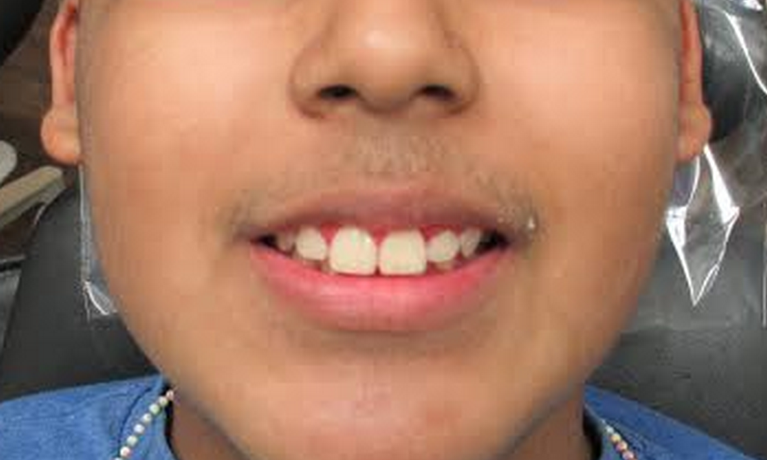 image of the same teeth after braces | temple tx