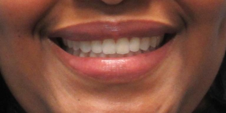 After her orthodontics, the same woman smiles with straight teeth.