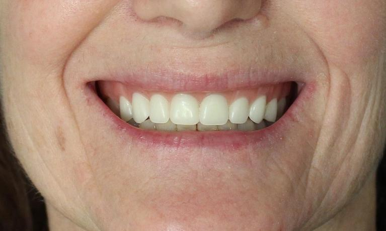 Creating-a-More-Youthful-Smile-with-Dentures-After-Image