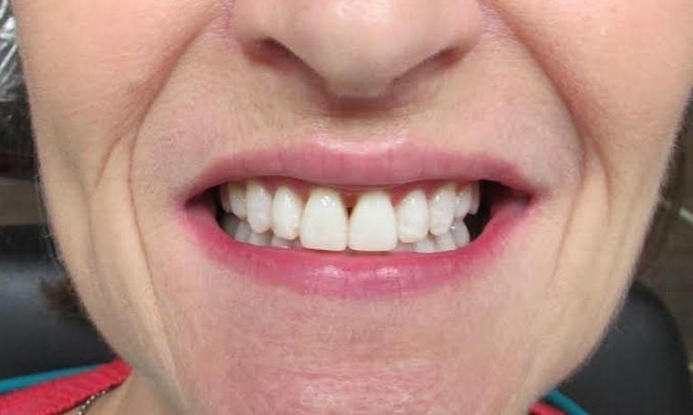 picture of the same teeth after Six Month braces and Zoom whitening | temple tx