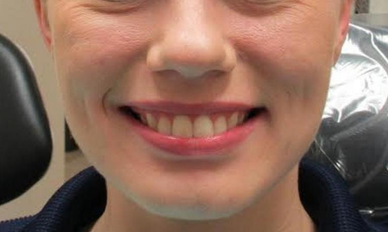 image of the same teeth after clear braces | temple tx