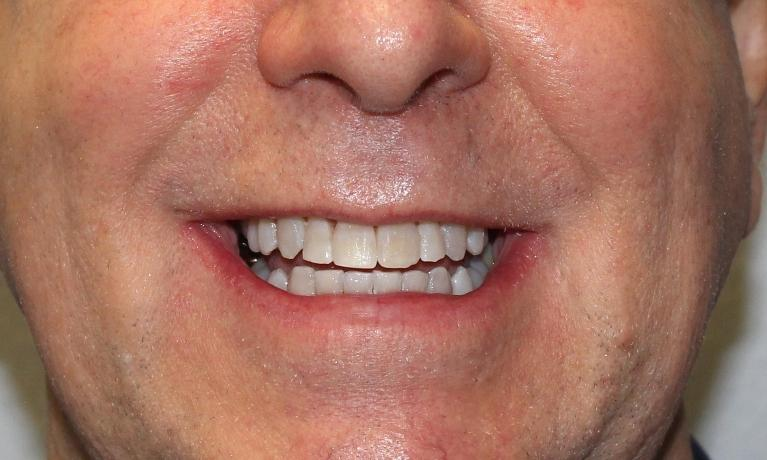 image of the same teeth after orthodontic treatment | temple tx