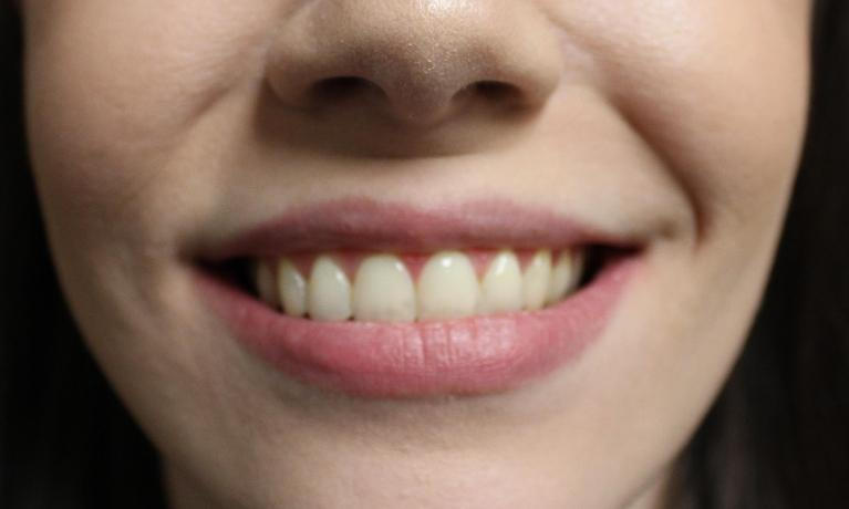 image of the same teeth straighter after orthodontic treatment | temple tx