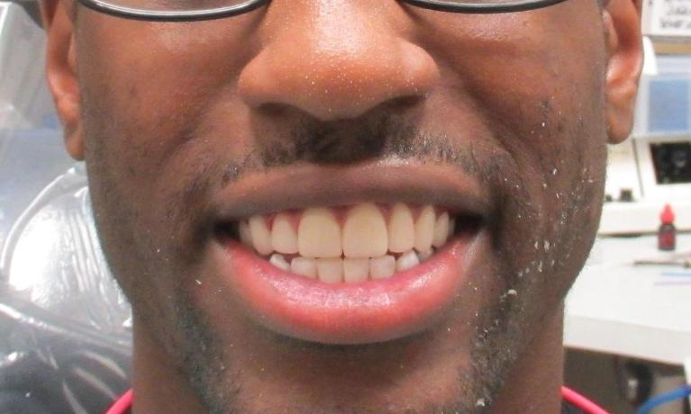 image of the same teeth after dental veneers | temple tx