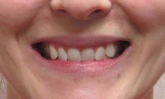 image of teeth before invisalign and Zoom whitening | temple tx