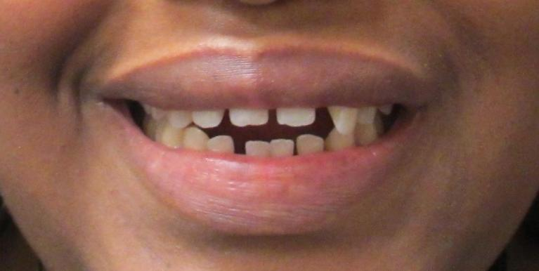 Creating-a-Beautiful-Smile-With-Traditional-Orthodontics-Before-Image
