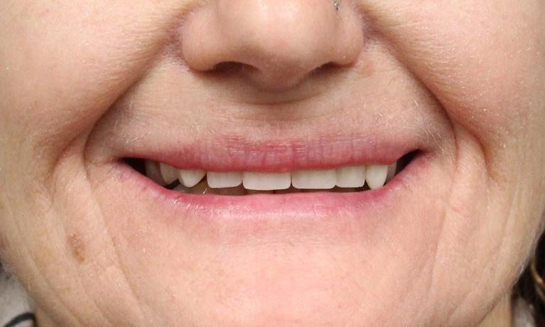 Creating-a-More-Youthful-Smile-with-Dentures-Before-Image
