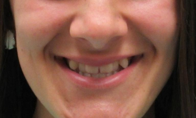 image of teeth before orthodontic treatment | temple tx