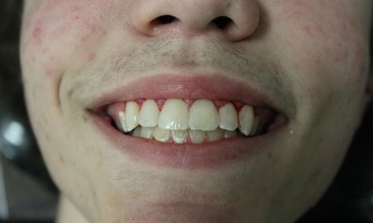 Teeth Whitening Temple Tx White Spots On Teeth After Braces