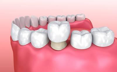 Model of dental implant placement l best dentist temple tx